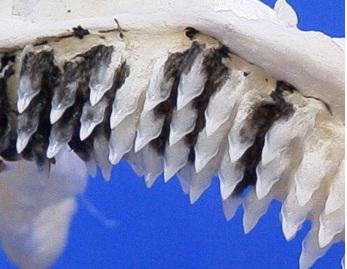 teeth.jpg